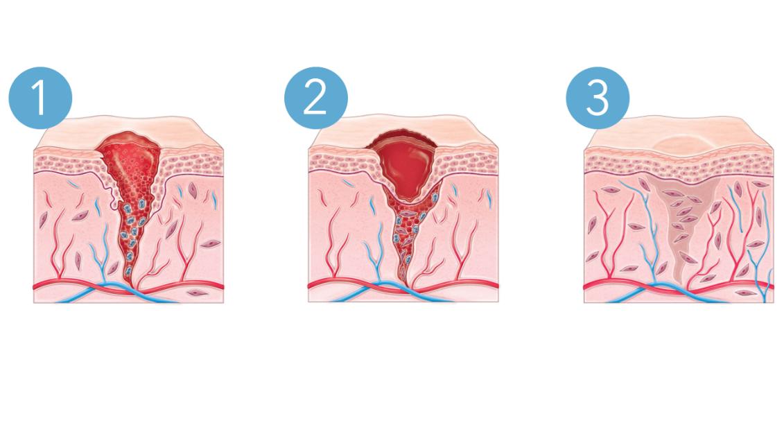 processus-cicatrisation-uriage