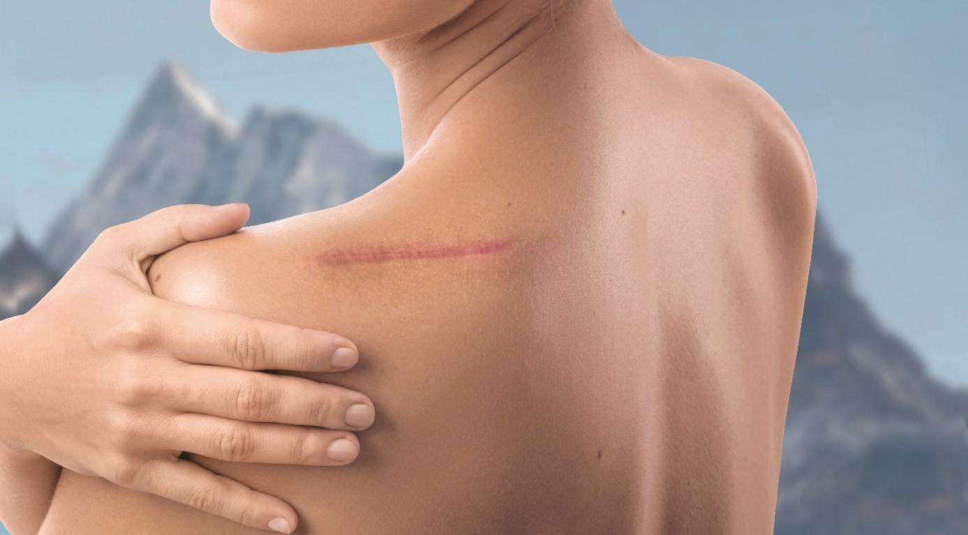 Tout savoir sur la cicatrisation - Comment ça marche ?